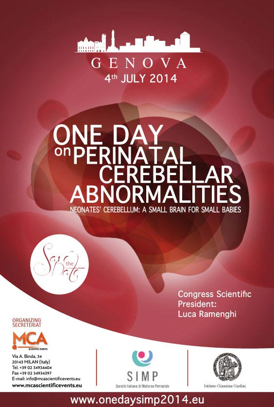 One day on Cerebellar Haemorrage